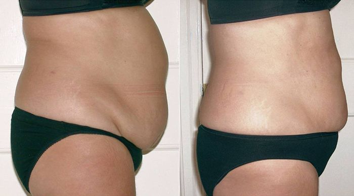 Inch-Loss-Before-and-After-02-1