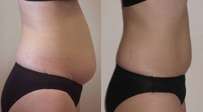 Inch-Loss-Before-and-After-09-1